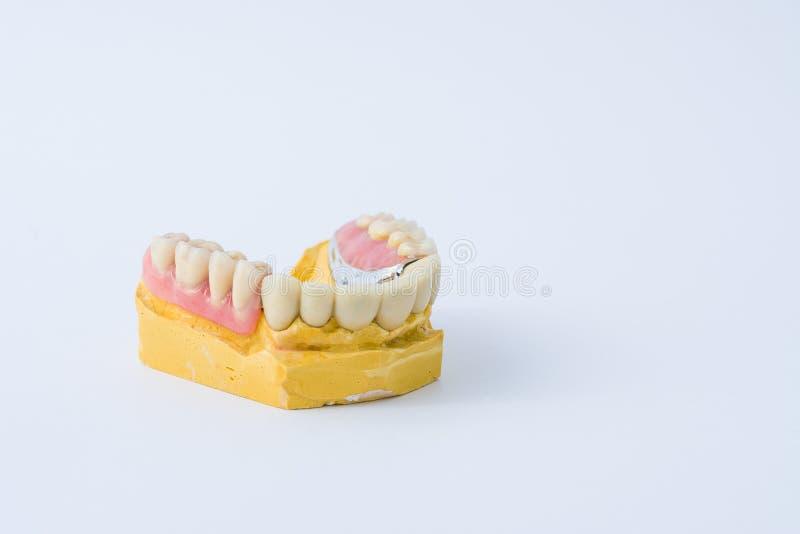 Protesi dentaria sopra una muffa fotografia stock