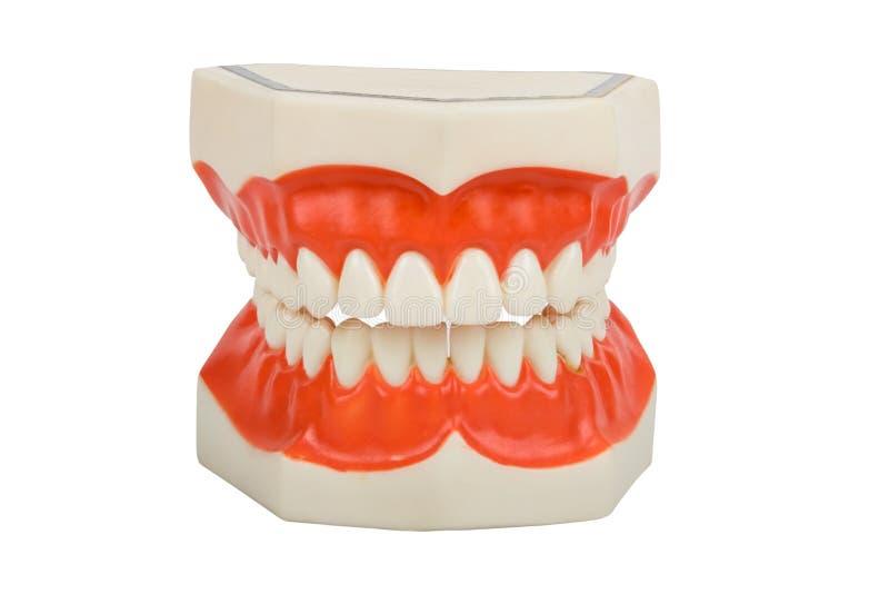 Protesi dentarie, protesi dentale immagini stock libere da diritti