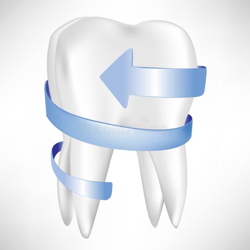 Protezione del dente con la freccia blu illustrazione di stock