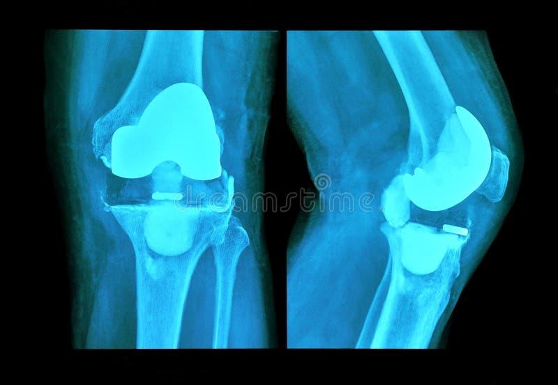 Prothèse de genou de rayon X photographie stock