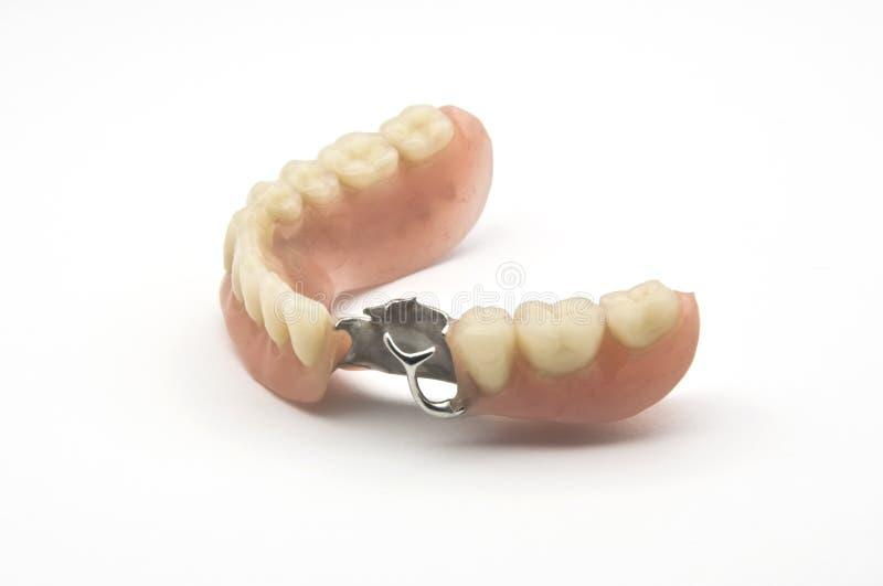 Prothèse dentaire photos libres de droits