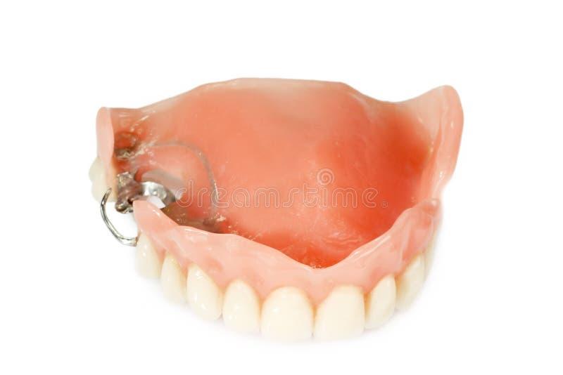 Prothèse dentaire image libre de droits