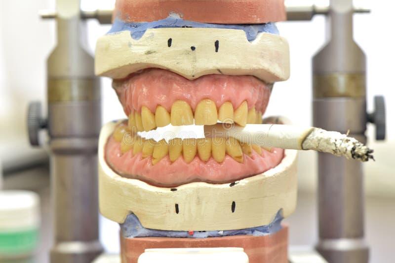 Prothèse dentaire avec une cigarette photos stock