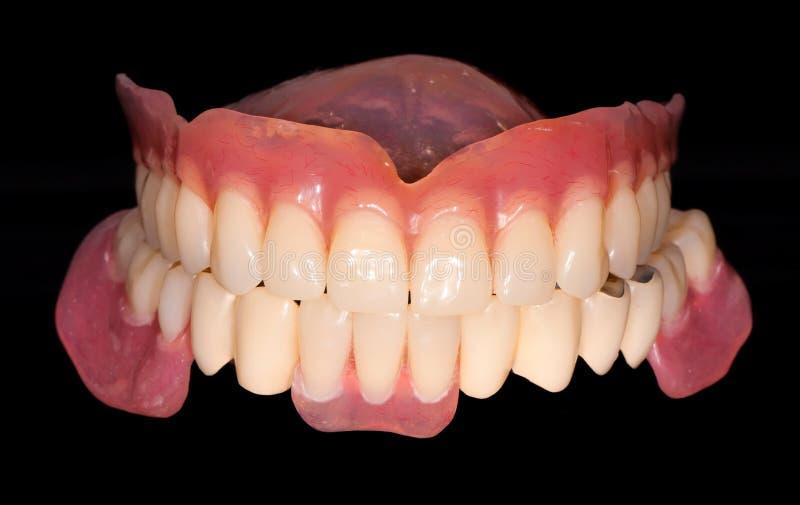 Prothèse dentaire image stock