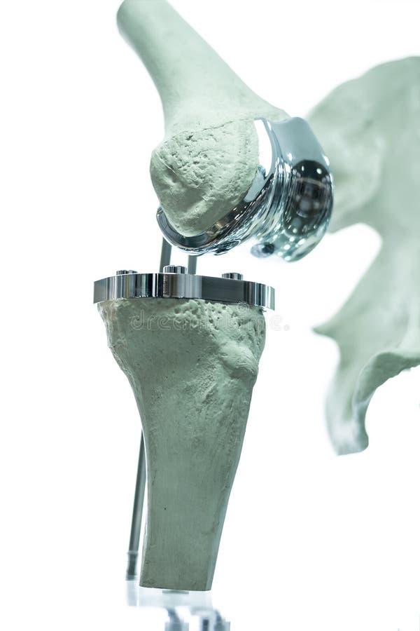 prothèse du genou 3D pour la médecine photos libres de droits