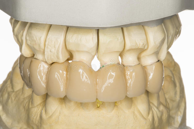 Prothesis dental imagem de stock royalty free