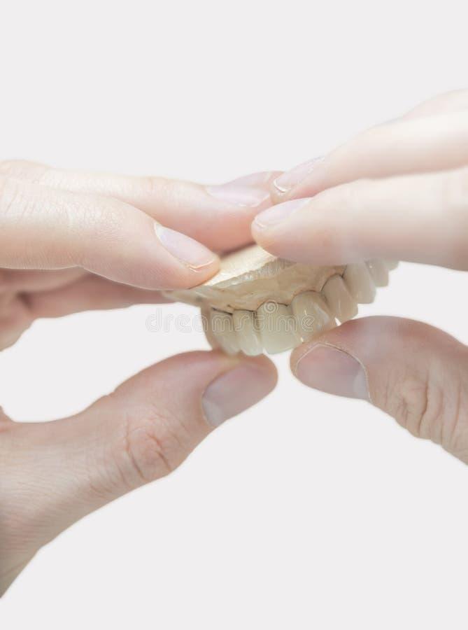 Prothetische Herstellung des Zahntechnikers des Zahnes lokalisiert stockfoto