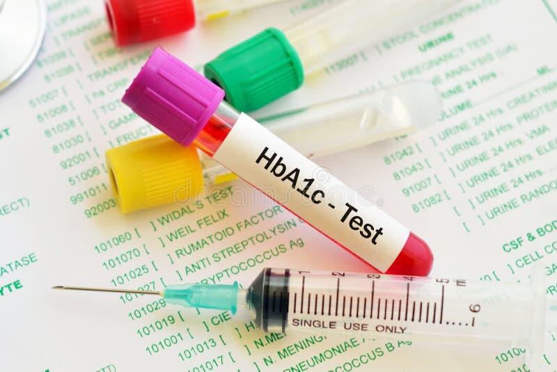 Prov för Hemoglobin A1c royaltyfria bilder