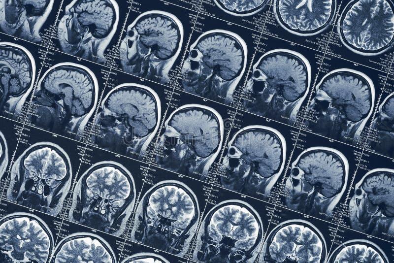 Prov för tomography för skalle för mänskligt huvud för neurologi för för MRI-hjärnbildläsning eller röntgenstråle arkivfoton