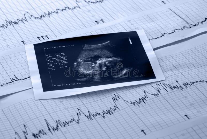 Prova dell'elettrocardiogramma e del feto immagini stock