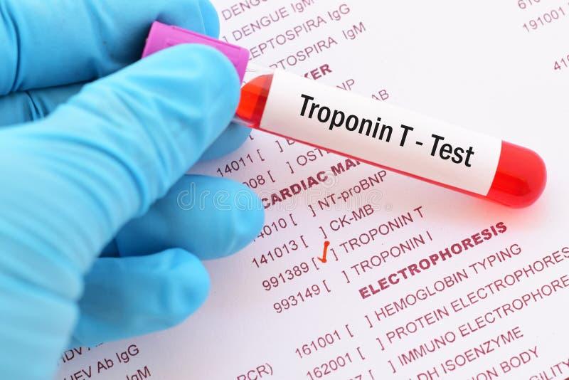 Prova della troponina T fotografia stock