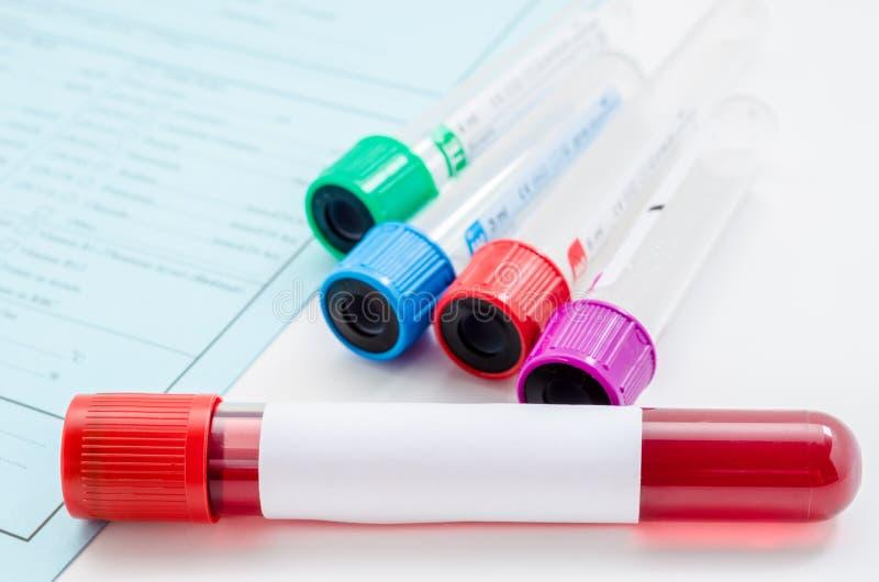 Prova di campione di sangue e sangue vuoto del tubo per l'analisi del sangue fotografia stock libera da diritti