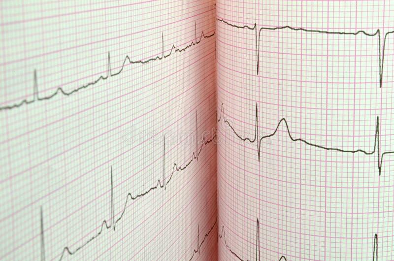 Prova di elettrocardiogramma fotografia stock