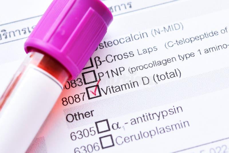 Prova di vitamina D immagini stock