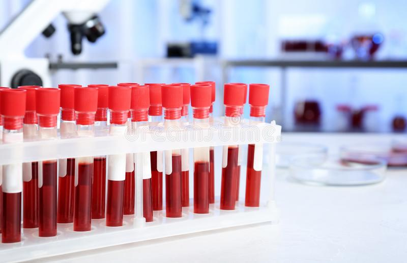 Provrör med blodprövkopior för analys på tabellen i laboratorium royaltyfri fotografi