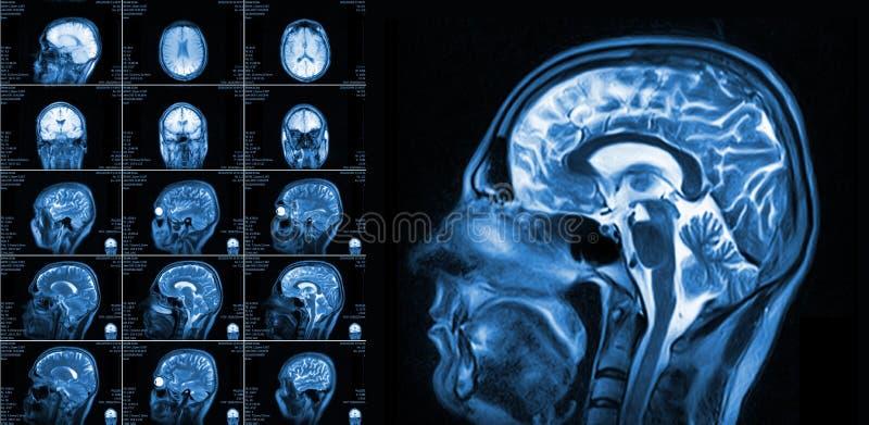 Proyección de imagen de resonancia magnética del cerebro foto de archivo