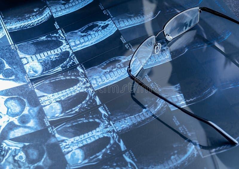 Proyección de imagen de resonancia magnética y vidrios fotografía de archivo libre de regalías