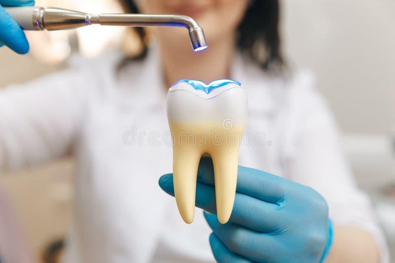 Prozess der F?llung auf gef?lschtem Zahn stockfotografie
