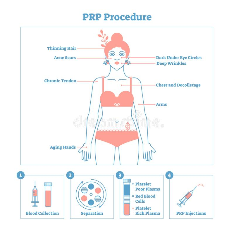 PRP做法传染媒介例证图表图,整容术做法计划 妇女秀丽和skincare 库存例证