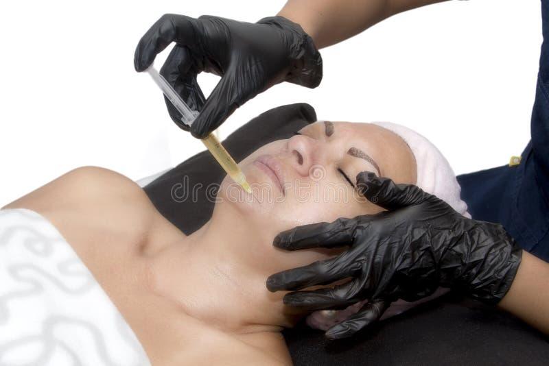 PRP - Πλούσια θεραπεία πλάσματος αιμοπεταλίων στο πηγούνι στοκ φωτογραφία με δικαίωμα ελεύθερης χρήσης