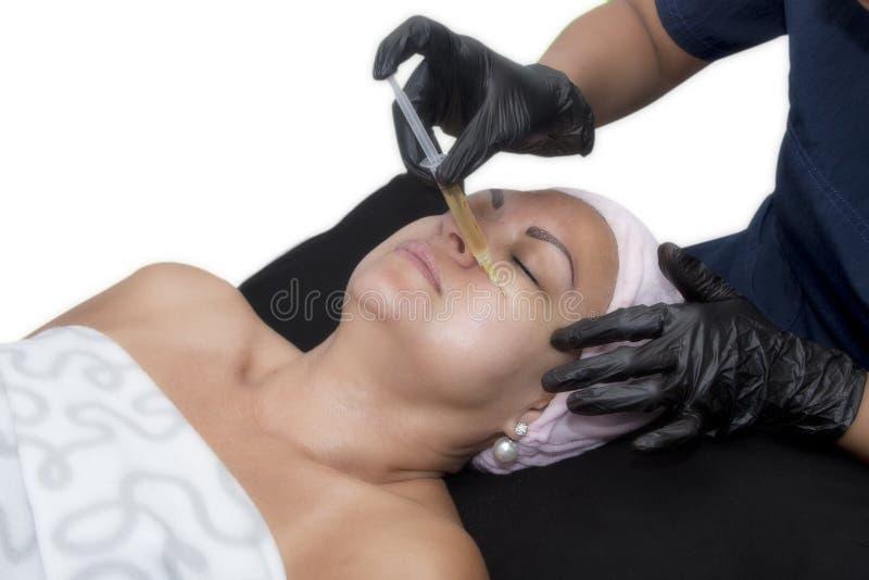 PRP - Πλούσια θεραπεία πλάσματος αιμοπεταλίων στο πρόσωπο στοκ εικόνα με δικαίωμα ελεύθερης χρήσης