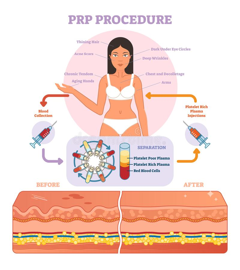 PRP Procedure vector illustration graphic diagram, cosmetology procedure scheme. Women beauty and skincare stock illustration
