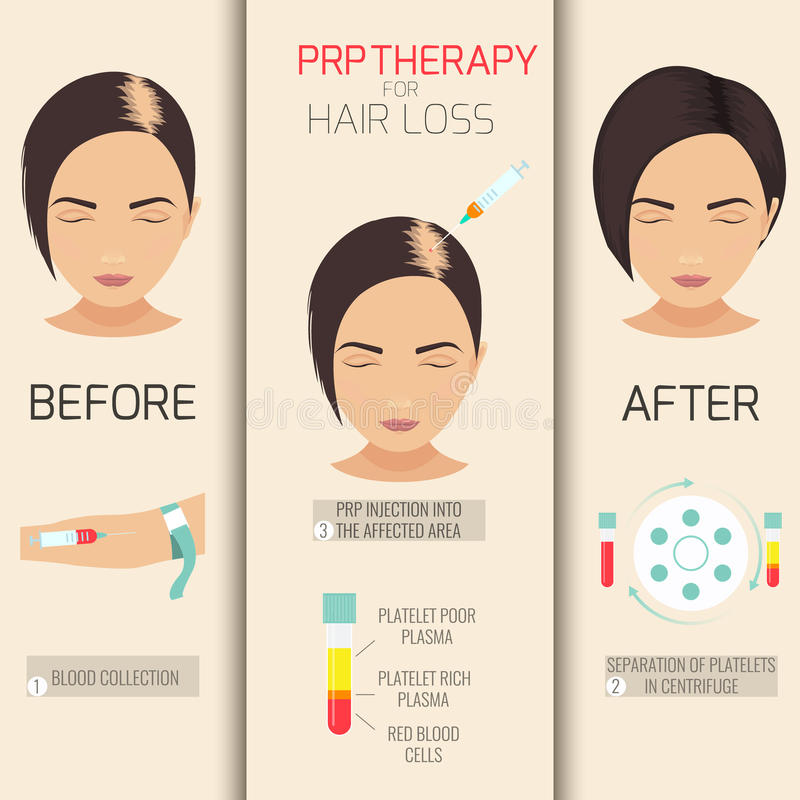 PRP therapy for hair loss. Platelet rich plasma injection. PRP therapy process. Female hair loss treatment infographics. Meso therapy. Hair growth stimulation royalty free illustration