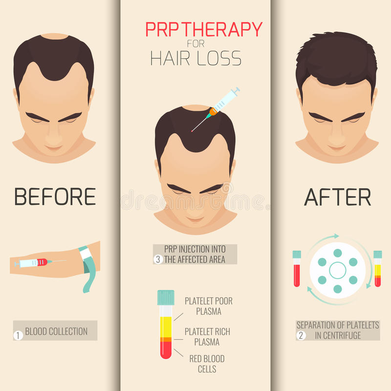 PRP therapy for hair loss. Platelet rich plasma injection. PRP therapy process. Male hair loss treatment infographics. Meso therapy. Hair growth stimulation stock illustration