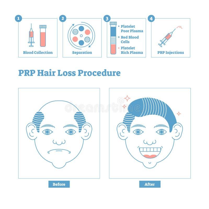 PRP-Verfahren, Männer ` s Schönheit und Gesundheit Cosmetology entwerfen Männliche Kahlheitsfragen und -lösung stock abbildung