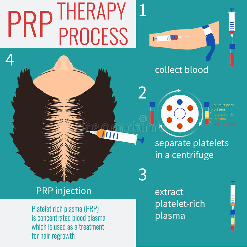 PRP zastrzyka terapia royalty ilustracja