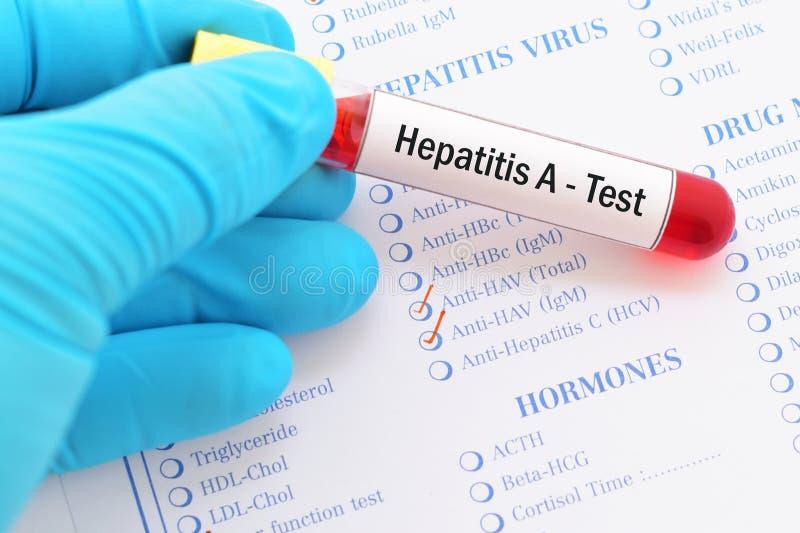Prueba de la hepatitis A foto de archivo libre de regalías