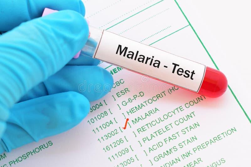 Prueba de la malaria imagen de archivo libre de regalías