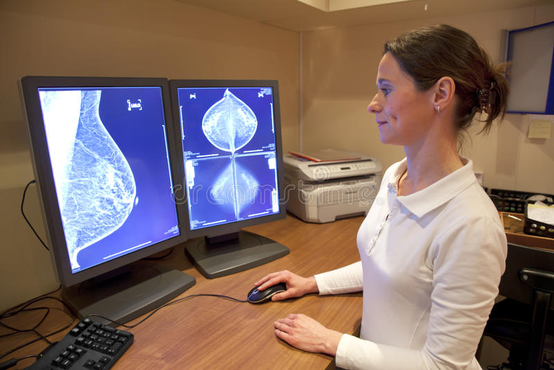 Prueba de la mamografía de los examens del técnico de la radiología foto de archivo libre de regalías
