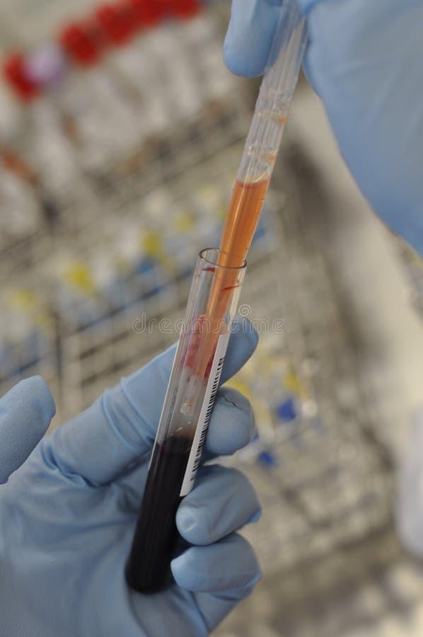 Prueba de la sangre imágenes de archivo libres de regalías