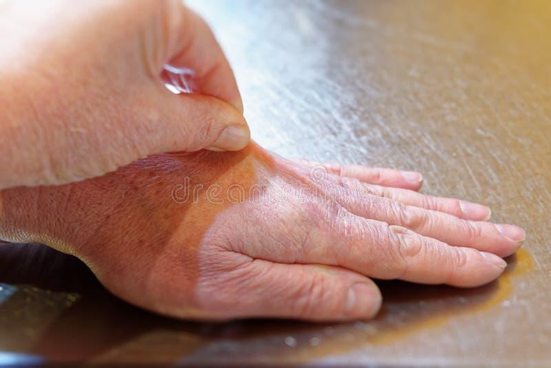 Prueba para la deshidratación tirando la piel hacia arriba en la parte de atrás de una mano imagen de archivo