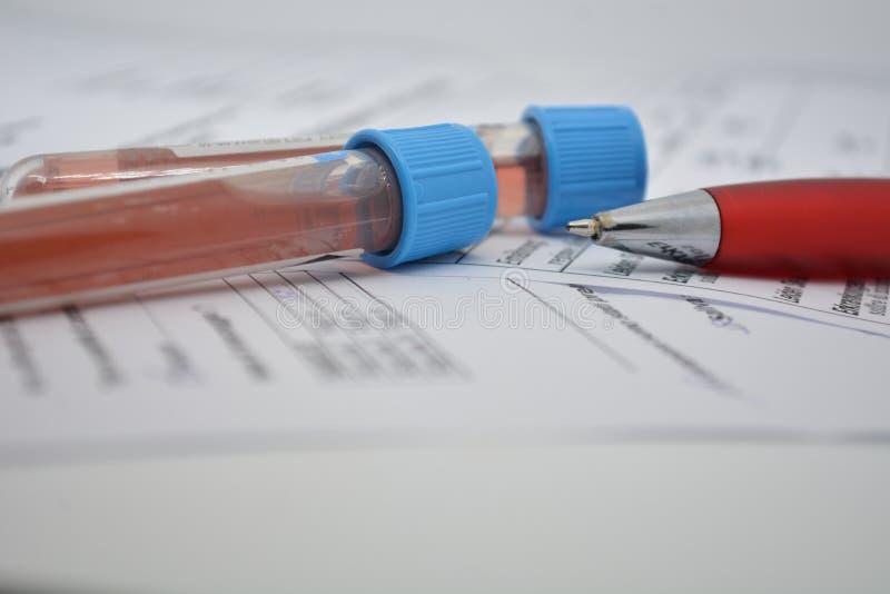 Pruebas de sangre en un laboratorio médico de la vacuna de Tubo de Prueba 19 virus imágenes de archivo libres de regalías