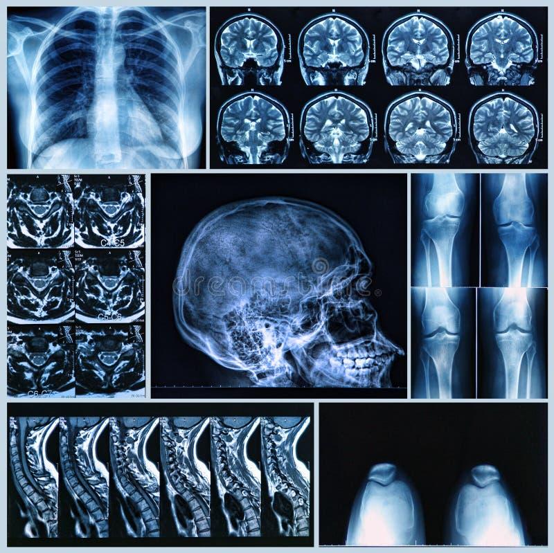 Prześwietlenie Ludzkie kości obrazy stock