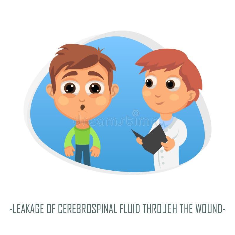 Przeciek cerebrospinal fluid przez zdyszanego medycznego pojęcia ilustracji