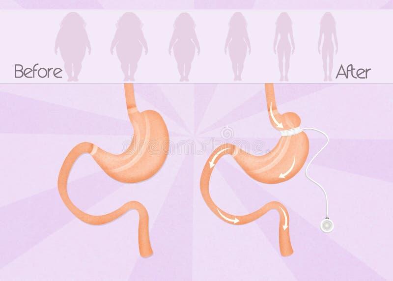 Przed i po żołądkową zespół operacją royalty ilustracja
