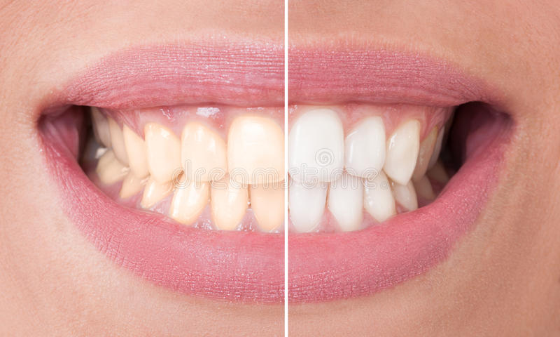 Przed i po bielić zdjęcie stock