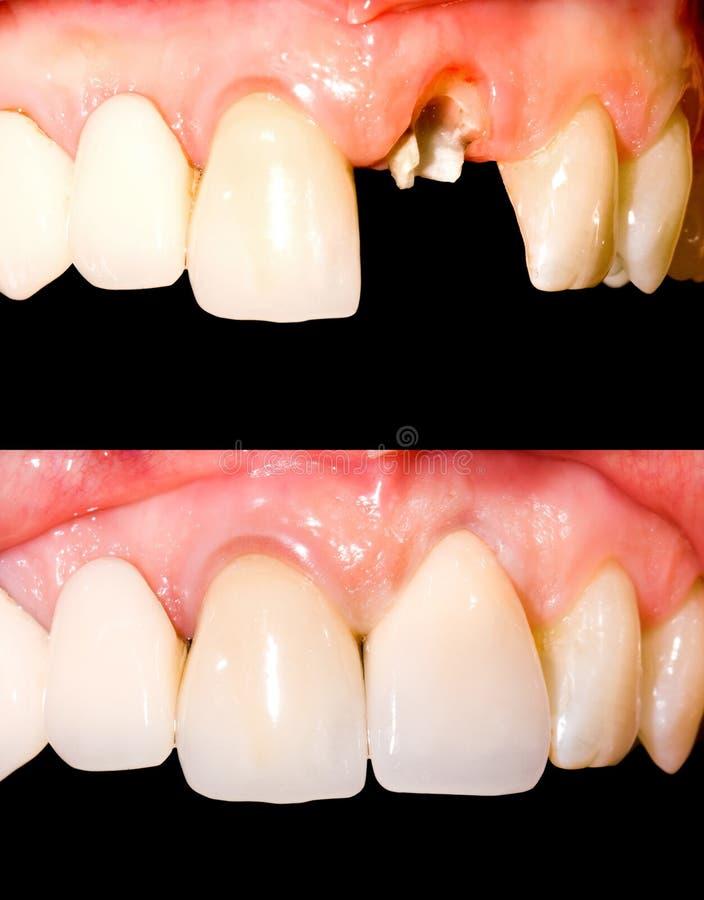 Przed i po traktowaniem zdjęcie royalty free