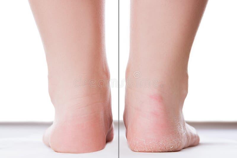 Przedtem po cieki opieki pojęcia, żeńska stopa, chiropody odizolowywający na białym tle obraz stock