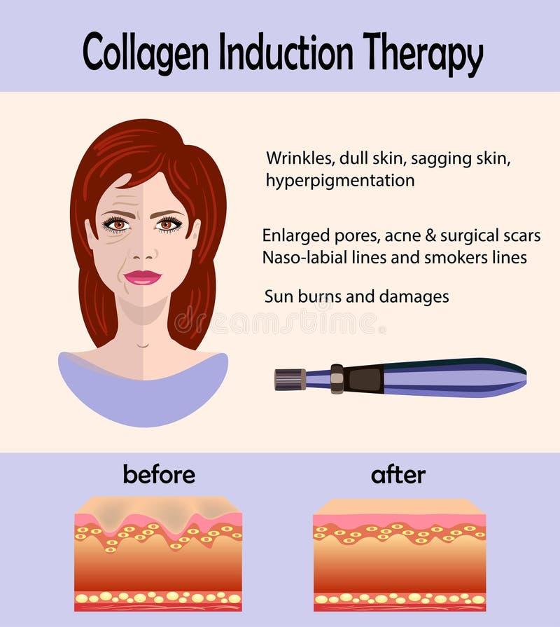 Przedtem po skutka, Microneedle cechowania przyrząd, kolagen indukcji terapia ilustracji