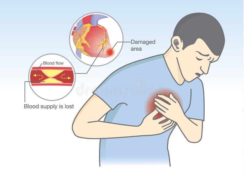 Przyczyna ataków serca objawy od przepływu krwi dostaje blokującą ilustracja wektor