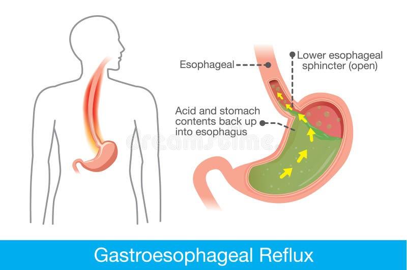 Przyczyna gastroesophageal reflux choroba w ludzkim żołądku ilustracji