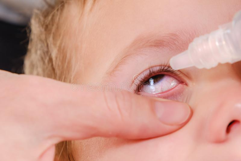 Przygląda się dziecka conjunctivitis i alergii czerwony alergicznego, pollen obrazy stock