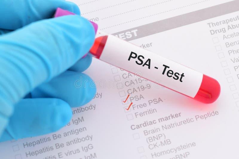 prostate cancer test blood