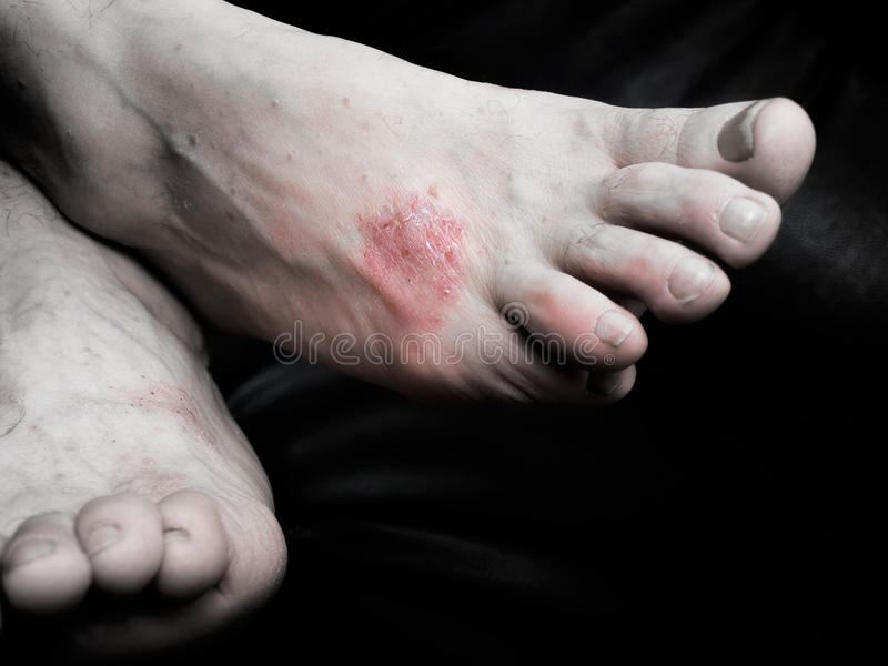 Psorias. Is is a chronic, non-contagious disease that affects mainly the skin stock image