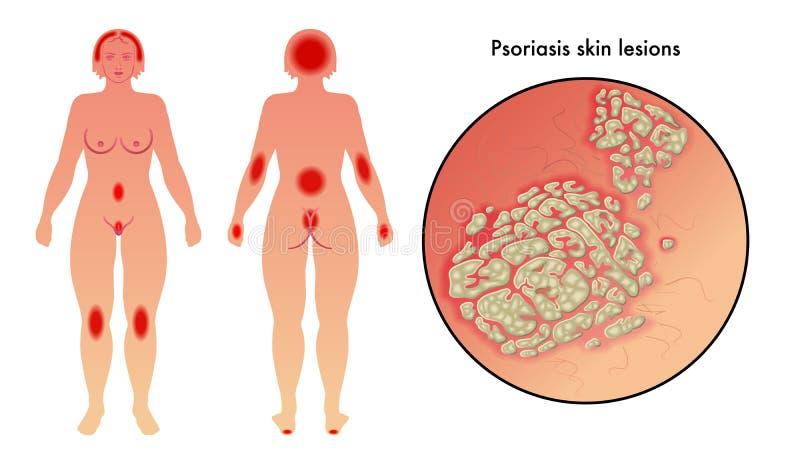 Psoriasis vector illustratie