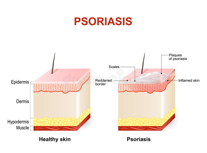 psoriasis vektor illustrationer
